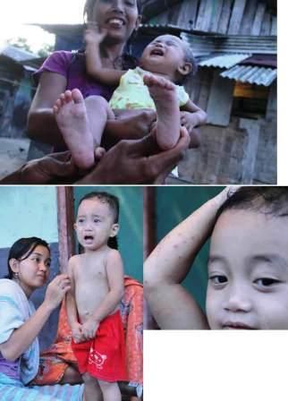 KHÓC: Natia (1,2 năm), bệnh nhân cúm singapore, khóc trên đùi (ảnh trên).  Trong khi Nazril (2 năm), nhăn mặt khi người mẹ đã cho cô một loại thuốc bôi mà cũng bị ảnh hưởng bởi sự chân bệnh, bàn tay và miệng (KTM) là.  Cả hai đều là w