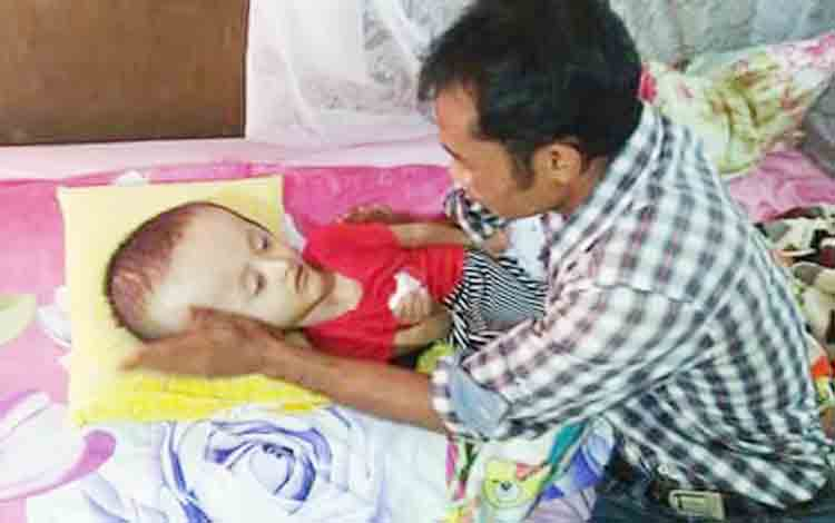 Aufa Azkiya, anak penderita hidrosefalus saat bersama ayahnya, Marhat.
