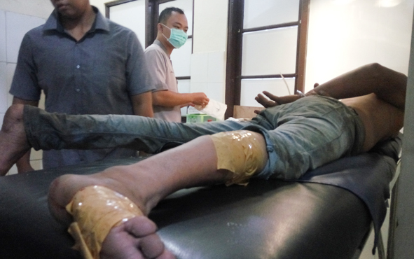 Pelaku pencuri kabel tembaga, Ilham Fauzi, menjalani perawatan di Rumah Sakit Bhayangkara, Palangka Raya, setelah menerima hadiah timah panas dari polisi, Kamis (22/11/2018).