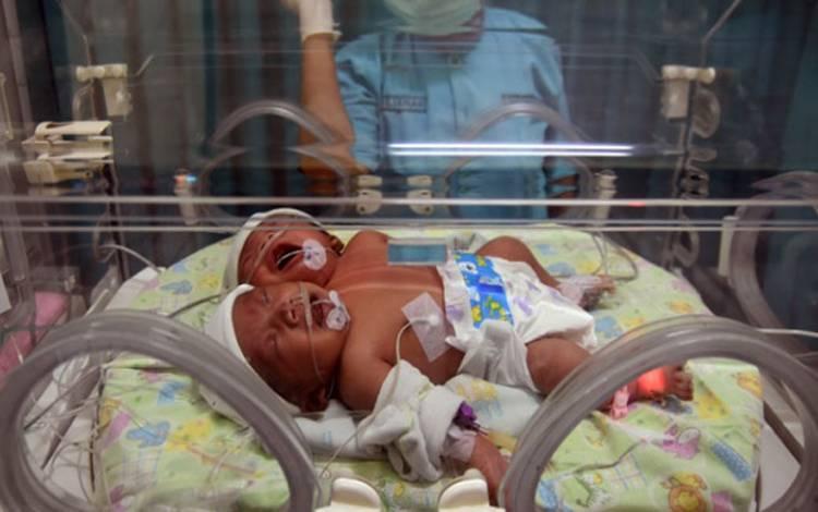 Ilustrasi bayi berkepala dua/kembar siam. ANTARA