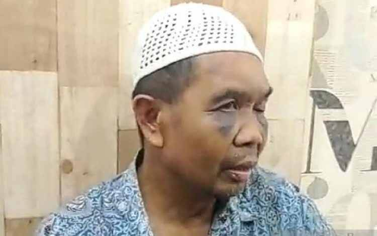 Sarpan (57), saksi pembunuhan yang diduga dianiaya oknum polisi saat berada di sel tahanan Polsek Percut Sei Tuan, Polrestabes Medan. (ANTARA/HO)