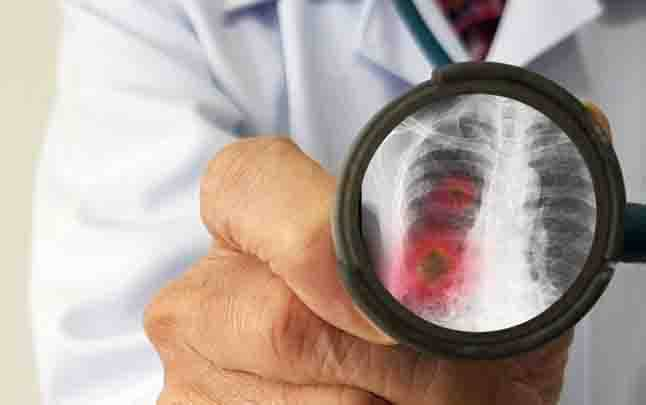 Ilustrasi pneumonia. (foto : shutterstock.com via teras.id)