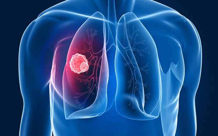 Ilustrasi Kanker paru-paru. Shutterstock