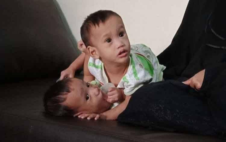 Bayi Kembar Siam akan Dioperasi Maret 2021