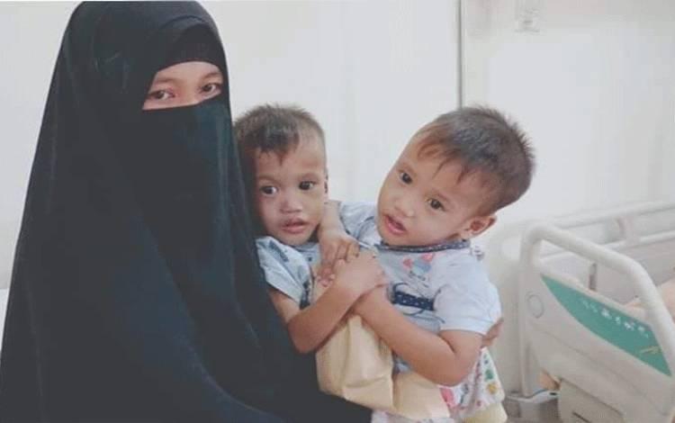 Istiharoh gendong anaknya yang kembar siam, Muhammad Abdullah dan Muhammad Ibrahim.