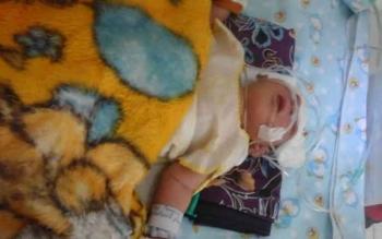 Okta saat masih dirawat di Rumah Sakit Umum Daerah (RSUD) Sukamara. Bayi malang itu akhirnya meninggal, Jumat (21/10/2016) dini hari. BORNEONEWS/NORHASANAH
