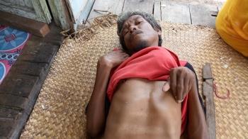 Johan, warga miskin di Pematang Kambat Seruyan hanya bisa berbaring di teras rumah, Senin (27/3/2017)