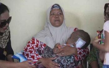 Ibu penderita Hidrosifalus bercerita proses operasi yang dijalani anaknya sesaat tiba di Pangkalan Bun.