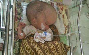 Muhammad Fadi, bayi penderita hidrosefalus.