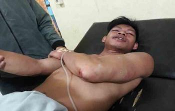 Asep, security Kantor CU Betang Asi, Desa Telok Kecamatan Katingan Tengah saat mendapat perawatan, Sabtu (19/8/2017)