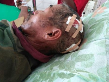 Bardin menderita luka di kepala setelah dibacok rekan kerjanya, Nani, pada 28 Agustus 2017.