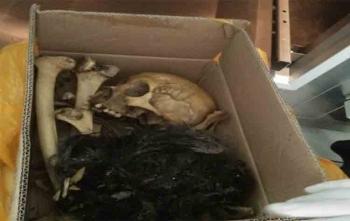 Tengkorak Dini Prasetyani (26) bidan cantik yang tewas dibunuh