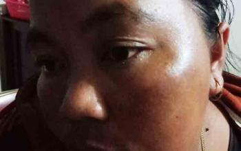 IRT korban penganiayaan, RKY, menunjukkan bekas pukulan di wajahnya.