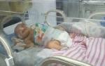 Operasi Bayi Ditemukan di Semak Berjalan Sukses