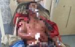 Saling Ejek, Pemuda di Murung Raya Kritis Kena 8 Tebasan dari Teman