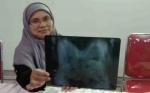Sejumlah Pihak Bantu Operasi Bayi Kembar Siam di Pangkalan Bun