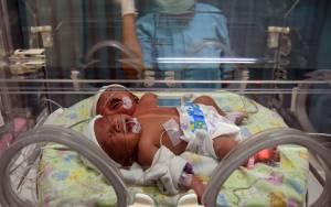 Kisah Bayi Kembar di India Diberi Nama Corona dan Covid