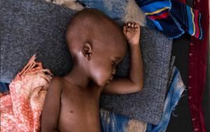 UNICEF Soroti Kasus Gizi Buruk di Indonesia, Apa Masalahnya