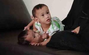 Usai Lebaran Bayi Kembar Siam Jalani Operasi Pemisahan di RSUD Sultan Imanuddin Pangkalan Bun