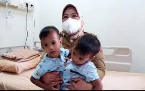 Balita Kembar Siam Dempet Dada Asal Kobar yang Berhasil Dipisahkan Kini Dirawat di Ruang PICU RSCM
